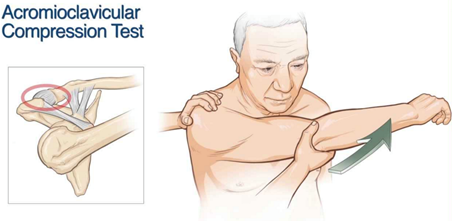 Morning report acromioclavicular ac joint dislocations the
