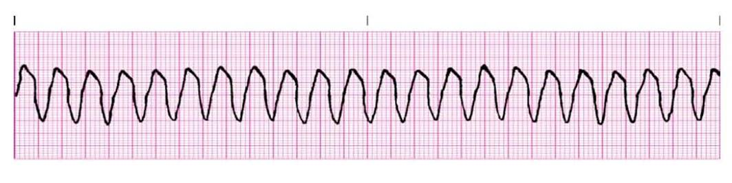 First-Line Treatment for Ventricular Tachycardia? What the